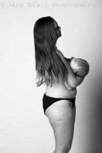 טיפול בתפרים אחרי לידה